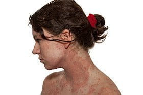 Facial Atopic Dermatitis: adult female