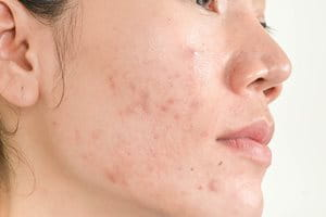 Acne scars and sun damage: hyperpigmentation
