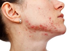 Acne and sun exposure