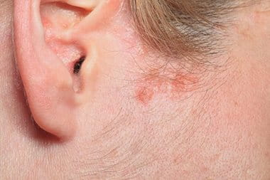 Eczema on head: skin in the hairline may flare-up